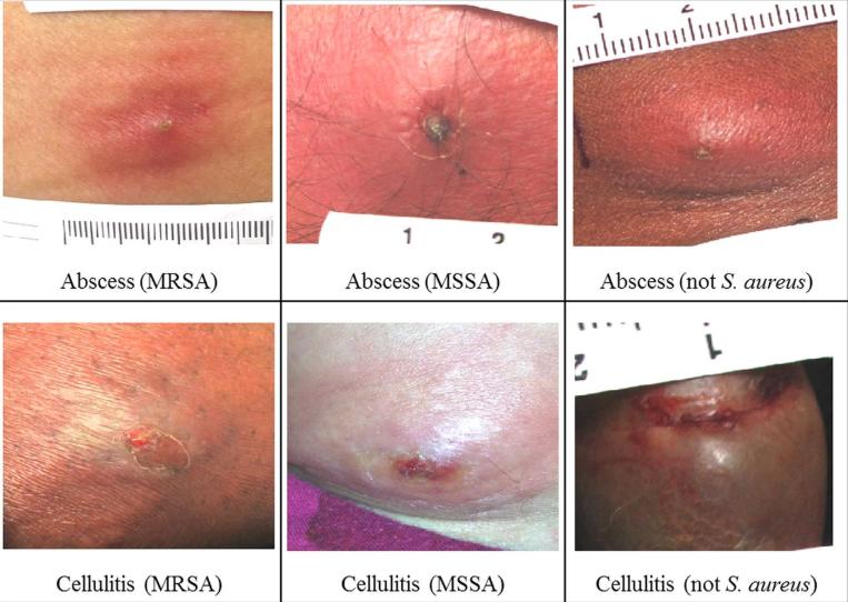 Examples of MRSA